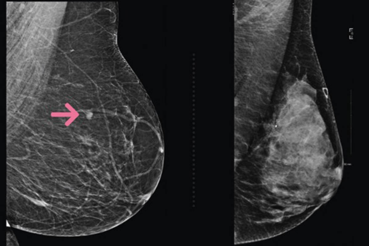 Breast Density To Be Included In Mammogram Results Across B C